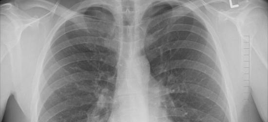 Mieszkańcy powiatu sanockiego, brzozowskiego i leskiego mogą skorzystać z darmowej tomografii płuc